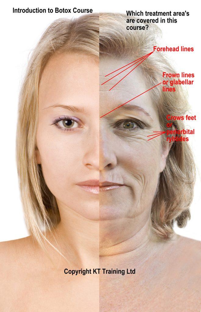 Foundation Botox Training Treatments