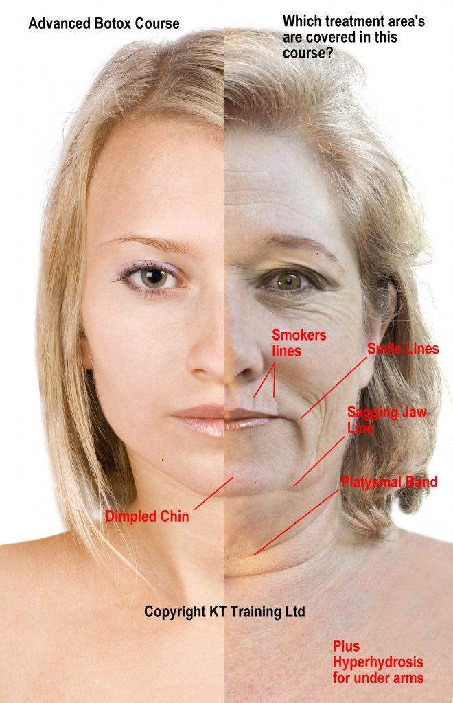 Advanced Botox Training Treatments